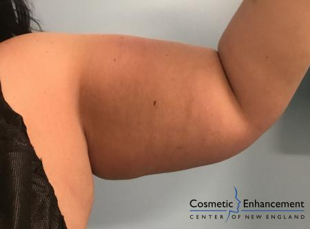 CoolSculpting®: Patient 12 - After Image
