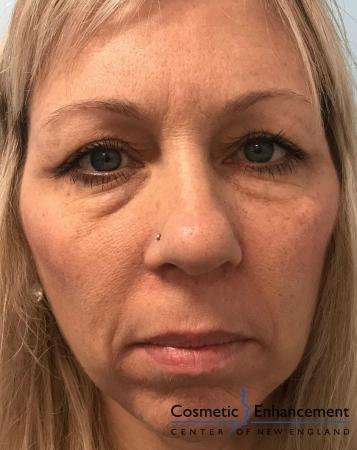 Voluma™ XC: Patient 1 - Before Image