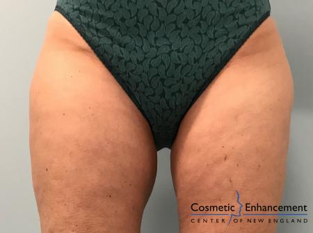 CoolSculpting®: Patient 24 - After Image