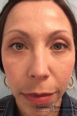 Fillers: Patient 1 - After Image