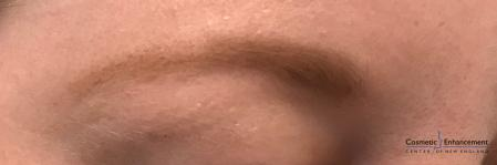 Microblading: Patient 4 - Before Image 2