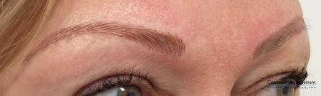 Microblading: Patient 3 - After Image
