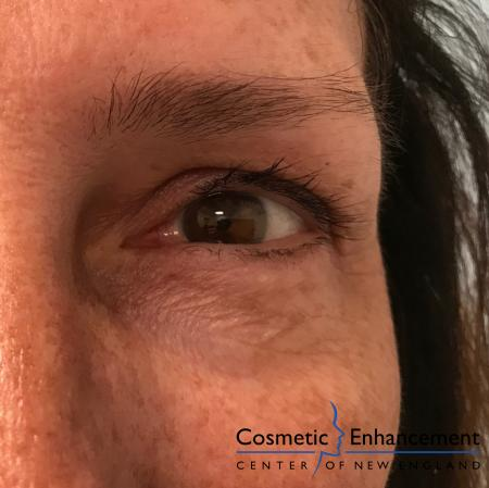 Ultherapy®: Patient 5 - Before and After Image 2