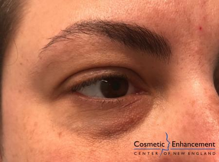 Fillers: Patient 5 - Before Image