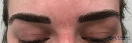 Microblading: Patient 1 - After Image