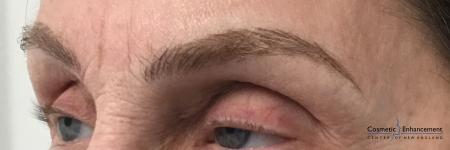 Microblading: Patient 5 - After Image 3