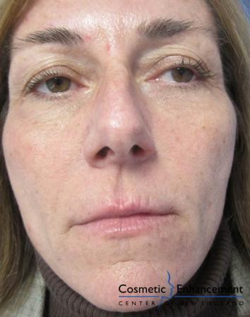 Vampire Facelift: Patient 4 - After Image