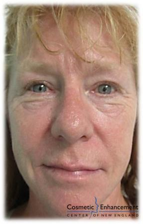 Vampire Facelift: Patient 2 - After Image