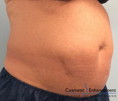CoolSculpting®: Patient 18 - Before Image