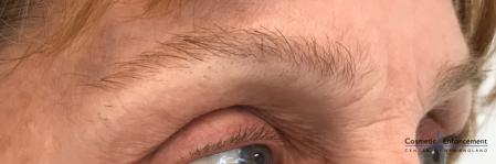 Microblading: Patient 5 - Before Image 2
