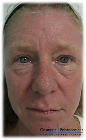 Vampire Facelift: Patient 2 - Before Image