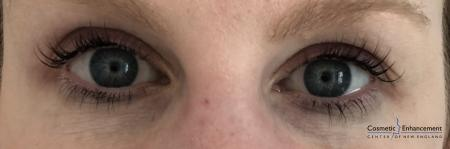 Lash Lift And Tint: Patient 3 - After Image