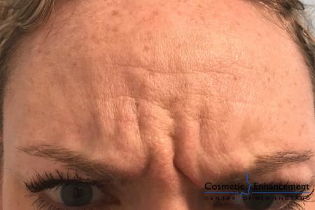 BOTOX® Cosmetic: Patient 2 - Before Image