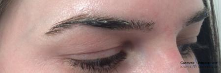 Microblading: Patient 1 - Before Image 2
