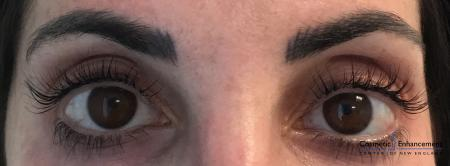 Lash Lift And Tint: Patient 1 - After Image