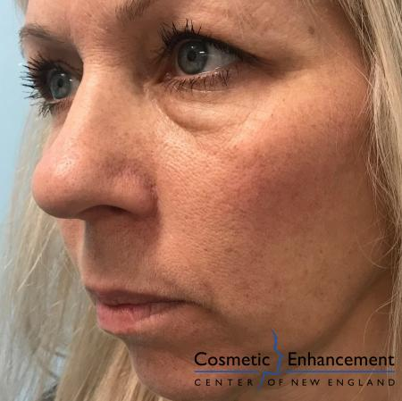 Voluma™ XC: Patient 1 - Before and After Image 2