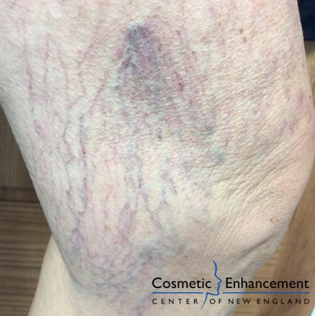 Sclerotherapy: Patient 2 - Before Image