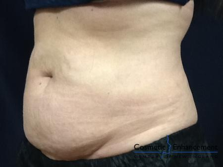 CoolSculpting®: Patient 26 - Before Image