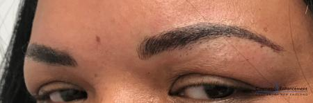 Microblading: Patient 2 - After Image 2
