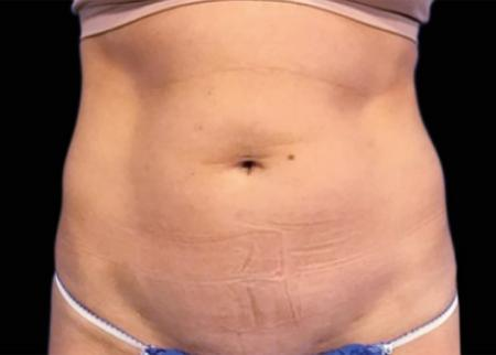 EMSCULPT®: Patient 1 - Before Image 1