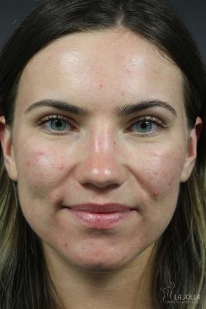 Acne Rejuvenation: Patient 1 - After