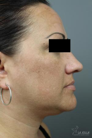 Kybella: Patient 2 - After