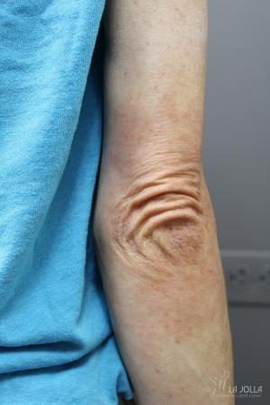StarWalker® Laser: Patient 6 - After