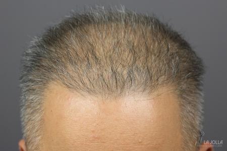Hair Restoration: Patient 2 - Before