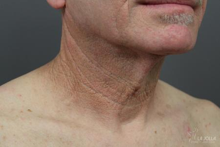 Non-Surgical Necklift: Patient 1 - After