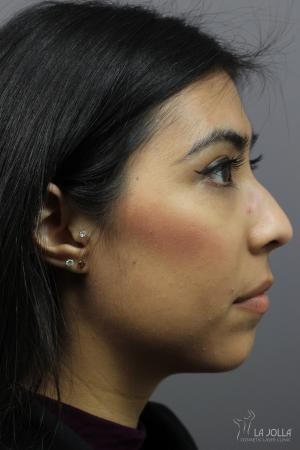 Non-Surgical Nose Job: Patient 3 - Before