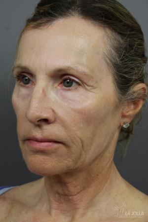 6D Platinum Laser Lift: Patient 2 - Before