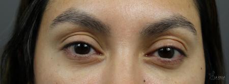 Under Eye Filler: Patient 6 - After