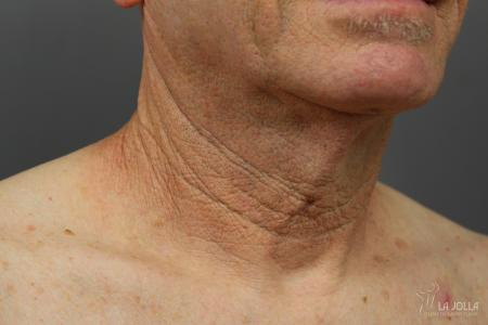 Non-Surgical Necklift: Patient 1 - Before