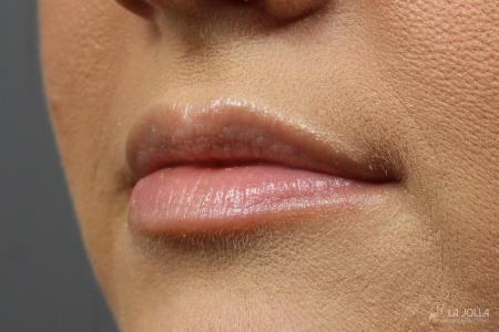Lip Filler: Patient 2 - Before