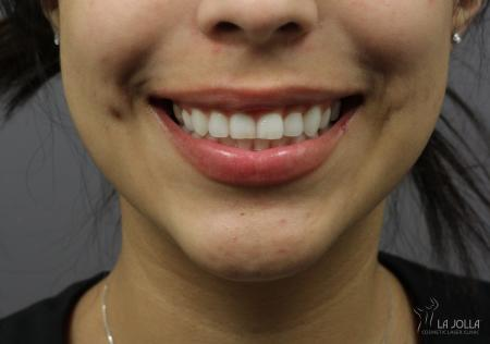 BOTOX® Cosmetic: Patient 3 - After