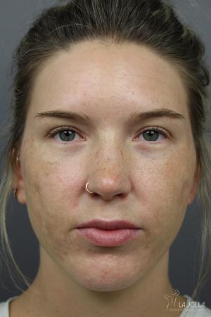 Acne Rejuvenation: Patient 8 - After