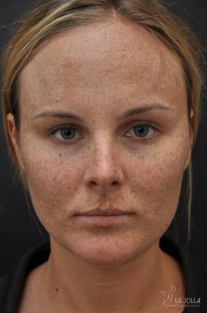 Chemical Peel: Patient 10 - Before