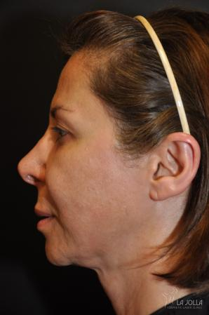 Ultherapy®: Patient 3 - Before
