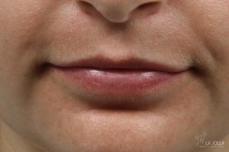 Lip Filler: Patient 1 - Before