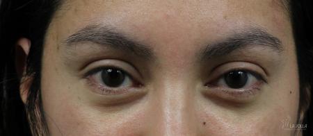 Under Eye Filler: Patient 6 - Before