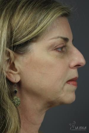 CoolSculpting®: Patient 1 - After