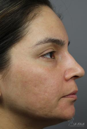 Acne Scars: Patient 2 - After