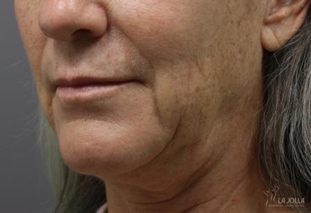 Ultherapy®: Patient 5 - Before