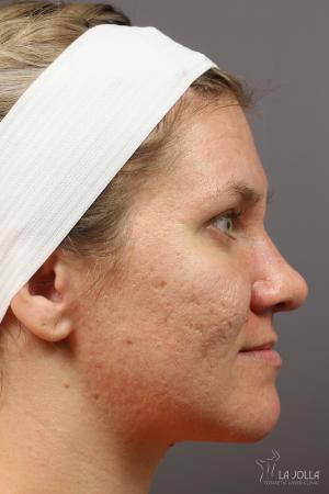 Juvéderm® XC: Patient 5 - Before