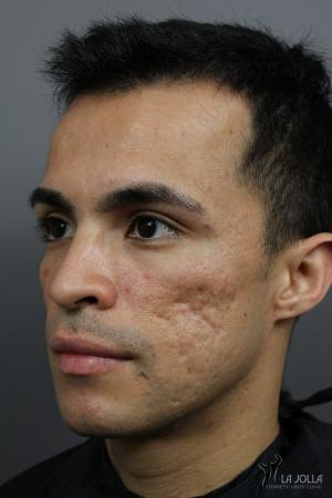 Acne Scars: Patient 3 - Before