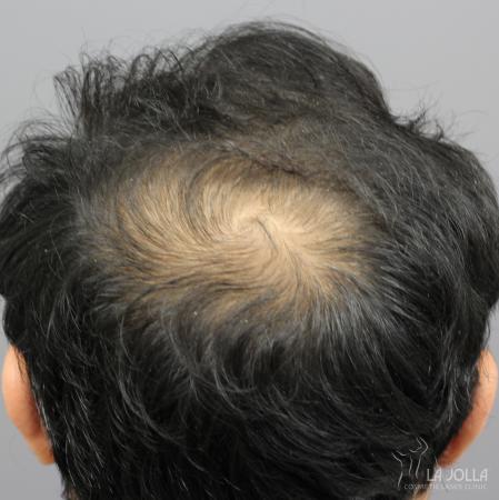 Hair Restoration: Patient 5 - Before
