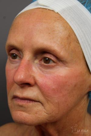 CO2 Laser: Patient 6 - Before