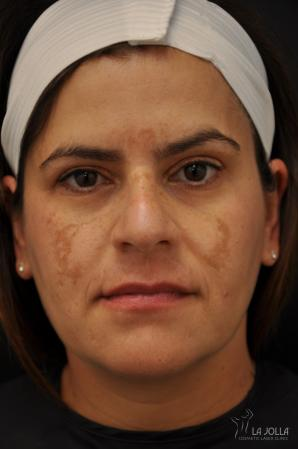 Chemical Peel: Patient 9 - Before