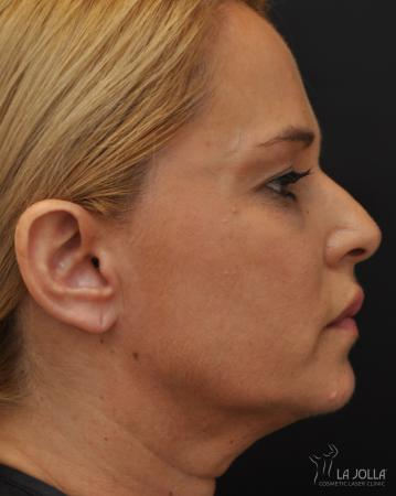 Ultherapy®: Patient 2 - After