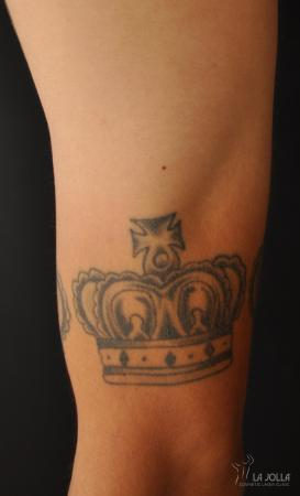 Tattoo Removal: Patient 3 - Before